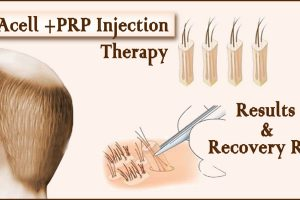 prp and acell- Acell +PRP Injection Therapy? Results and Its Recovery Rate
